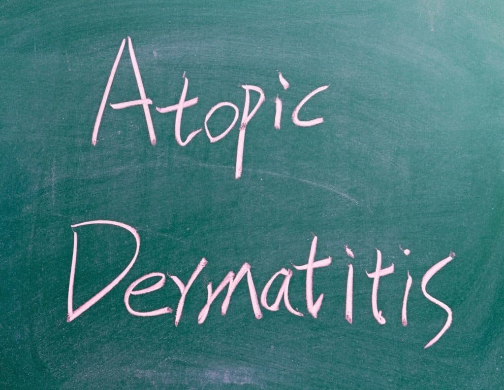 Do you have dry, itchy skin? You might be one of 31 million people who suffer from atopic dermatitis, a form of eczema. Here are the top skincare tips to help you manage it.